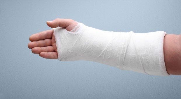 Ein gebrochener Arm kann zu langen Fehlzeiten führen – rechtfertigt aber meist keine Kündigung wegen Krankheit.