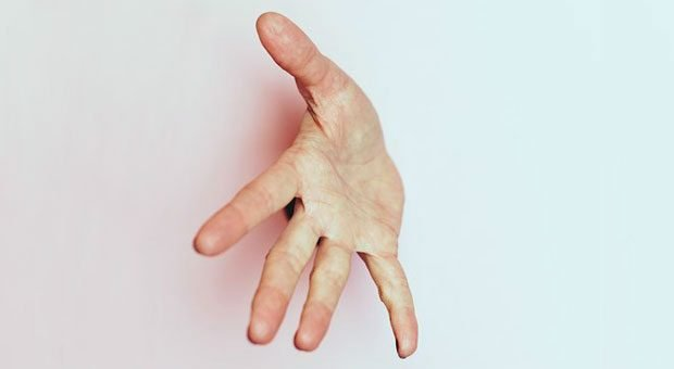 Hand drauf: Der Handschlag zur Begrüßung gehört in manchen Teams zum Alltag.